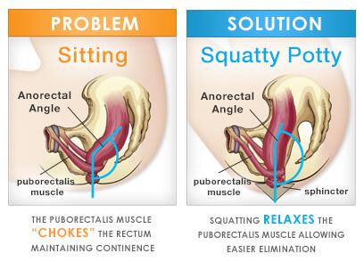 Sitting vs. squatting